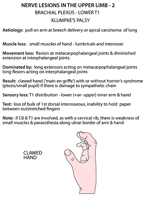 Instant Anatomy Upper Limb Nerves Nerve Lesions Lower