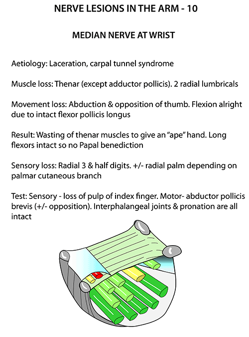 Instant Anatomy - Upper Limb - Nerves - Nerve Lesions - Median Nerve ...