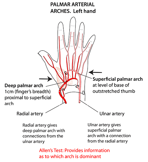 Instant Anatomy - Upper Limb - Areas/Organs - Hand ...
